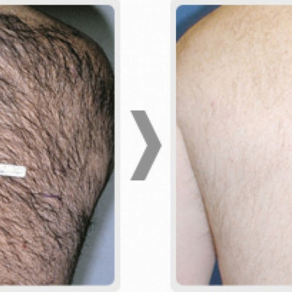 Broomfield Hair Removal